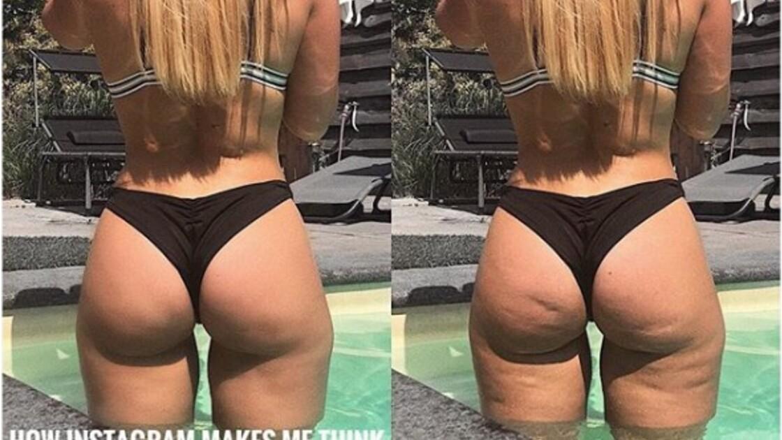 Body shaming : en montrant sa cellulite, cette influenceuse lutte contre les clichés sur Instagram