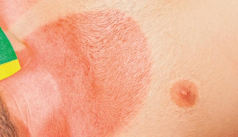 Qu'arrive-t-il à notre peau quand elle prend un gros coup de soleil ?