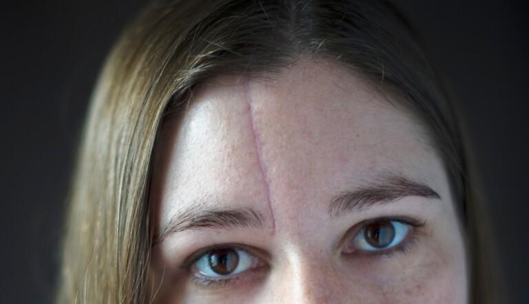 """Laureen : """"Ma cicatrice me donne un petit côté gangster qui me plaît bien"""""""