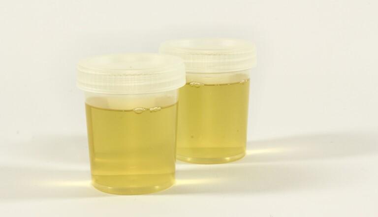 Chez Amazon, les employés obligés d'uriner dans des bouteilles pour tenir la cadence