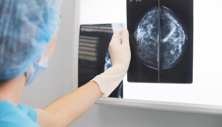 Dépistage du cancer du sein: une intelligence artificielle de Google meilleure que les humains