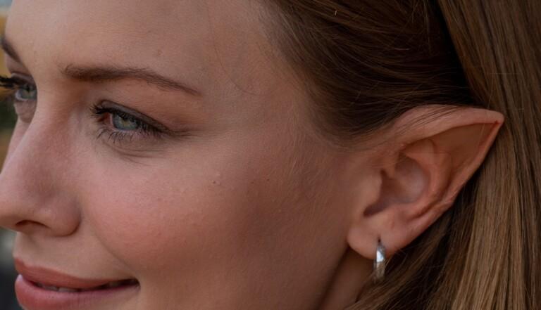 """En Chine, les """"oreilles d'elfe"""" deviennent la nouvelle chirurgie à la mode"""